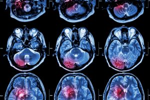 New Treatment for Brain Tumors using Bioelectronic Devices